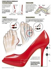 Infografía de los problemas del uso de zapatos de tacón
