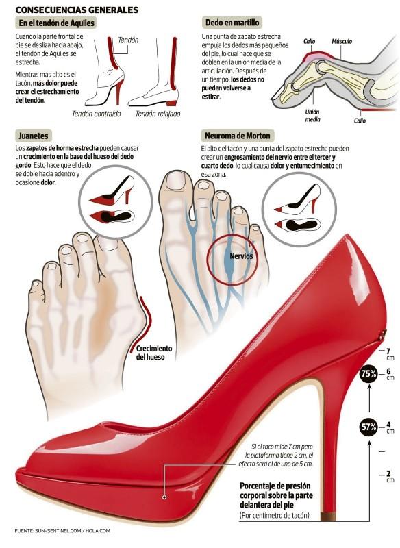 Infografía de las consecuencias del uso de zapatos de tacón en la mujer